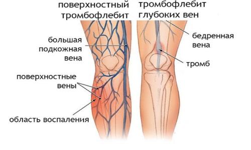 Эскузан используют для лечения тромбофлебита
