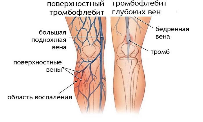Медикамент применяют для лечения тромбофлебита