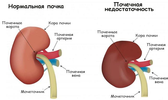 С осторожностью и под контролем врача назначают Троксевазин при почечной недостаточности