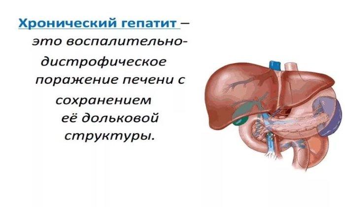 Аллохол показан в составе комплексной терапии при лечении хронического гепатита