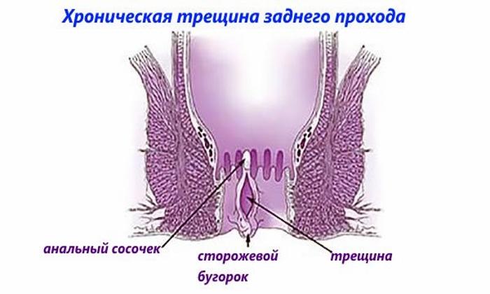 Препарат используют в составе комплексной терапии при хронических трещинах анального отверстия