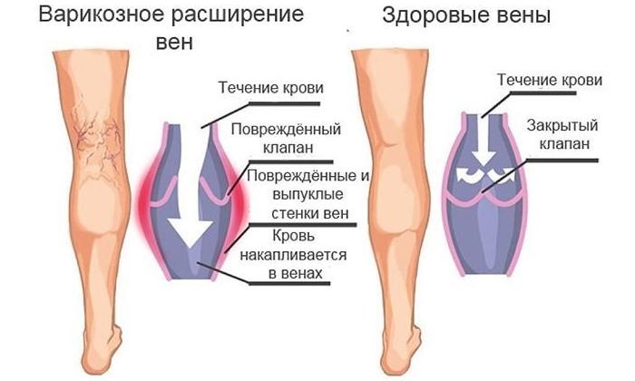 Врачи назначают комбинацию этих веществ для лечения варикозного расширения вен и судорог нижних конечностей