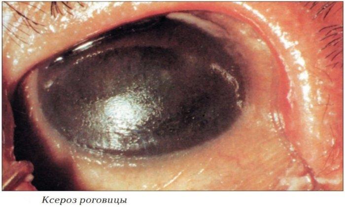Лекарство показано к использованию в случае ксероза роговицы