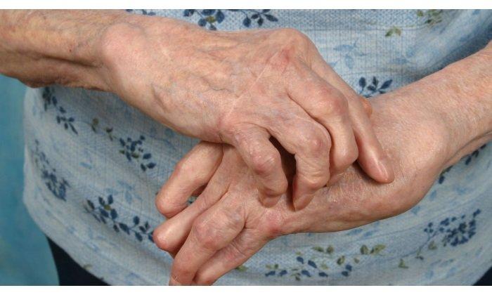 Врачи рекомендуют принимать лекарство при ревматических паталогиях