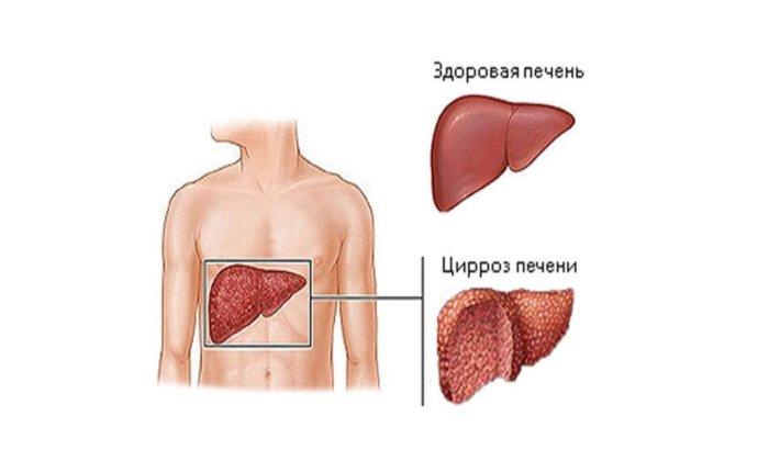 Аллохол показан в составе комплексной терапии при лечении цирроза