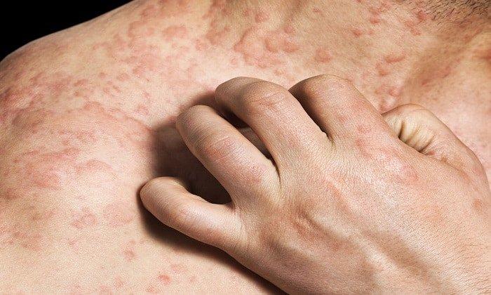 Гидрокортизон и новокаин способны вызывать острую аллергическую реакцию