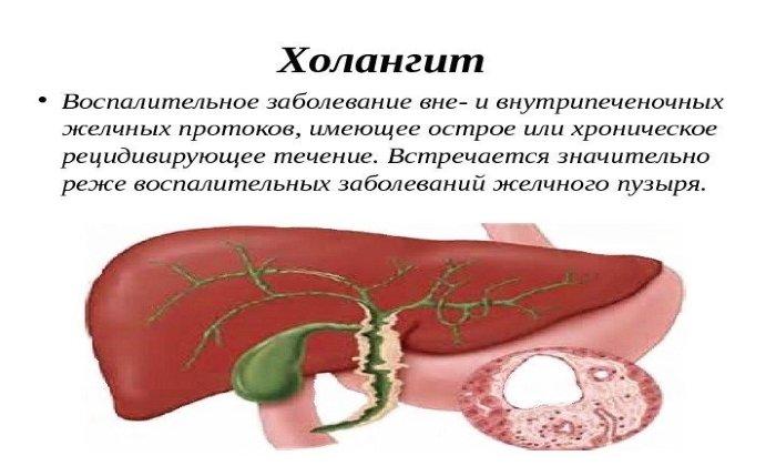 Аллохол показан в составе комплексной терапии при лечении холангита
