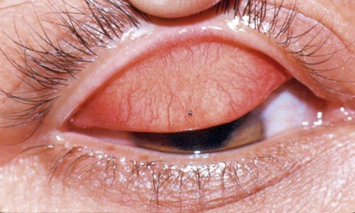 Лекарство показано к использованию в случае травмы конъюнктивы