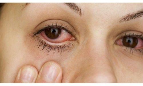 Препарат назначается при болезни глаз