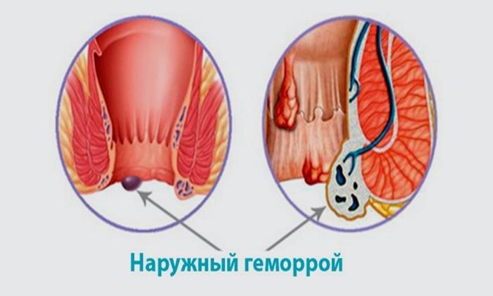 Препарат используют в составе комплексной терапии при всех стадиях наружного геморроя