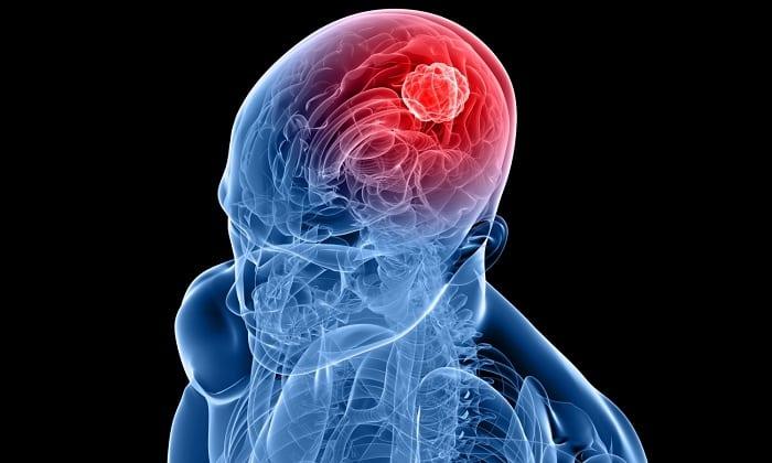 Актовегин назначают для устранения последствий, наступивших в результате черепно-мозговой травмы