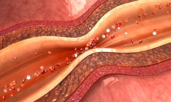 Дротаверин снимает спазм гладкой мускулатуры сосудистых стенок