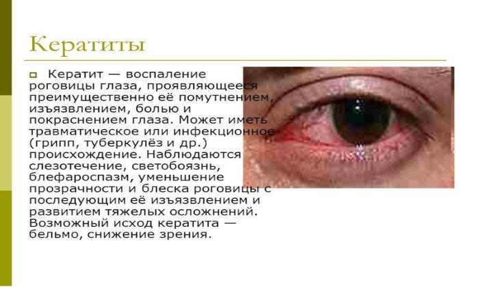 Лекарство показано к использованию в случае кератита