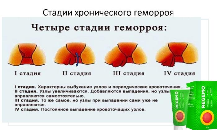 Крем рекомендуется использовать для полного избавления от геморроидальной болезни при ее 2-ой или 3-ей стадии развития