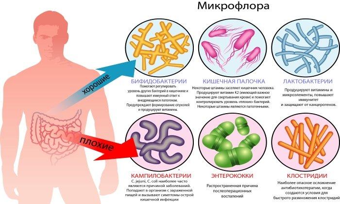 Дюфалак назначают при нарушении нормальной микрофлоры кишечника