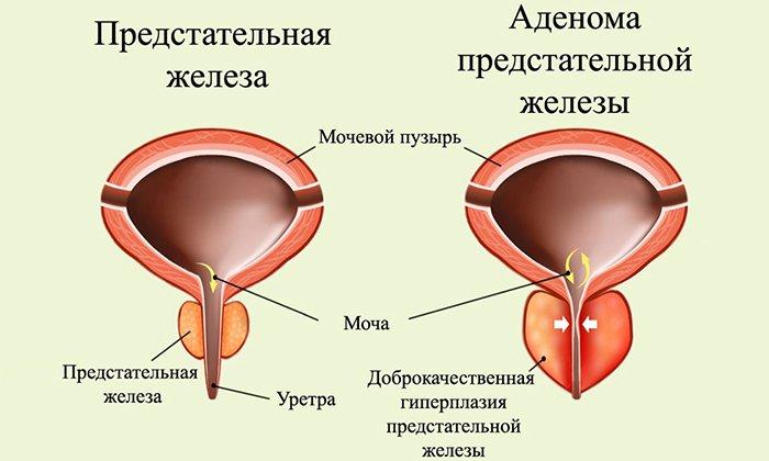 Дротаверин не применяют при аденоме предстательной железы