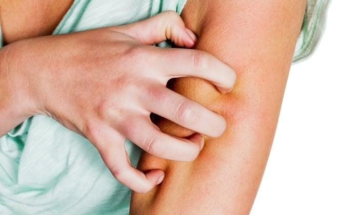 В ходе терапии Креоном возможна сыпь на коже