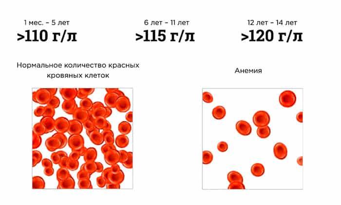 Новокаиновые растворы противопоказаны при анемии в тяжелой форме