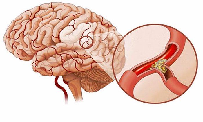 Дротаверин применяют при спазме сосудов головного мозга