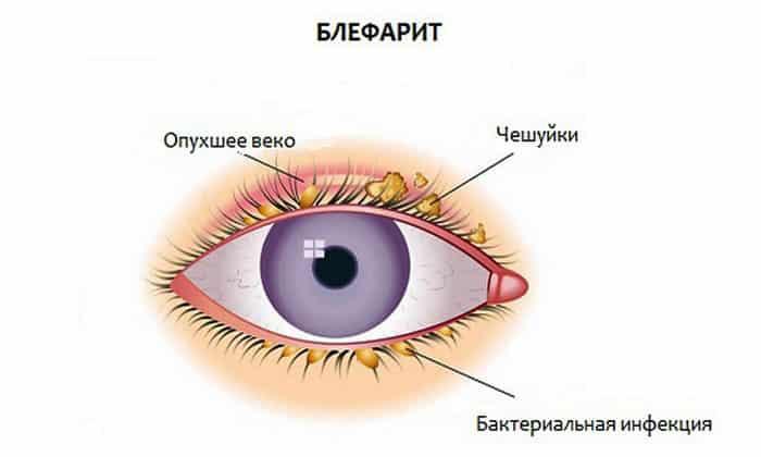 Блефарит является показанием к использованию глазных капель
