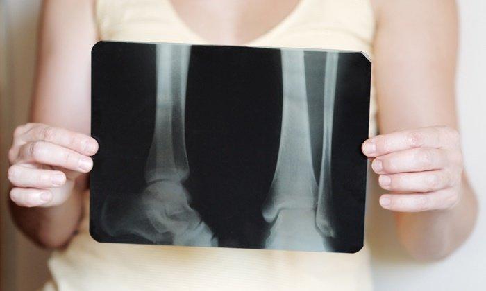 Одновременный прием препаратов может привести к развитию остеопороза
