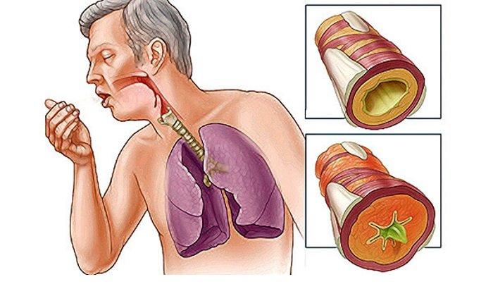 Показания к одновременному назначению - бронхиальная астма