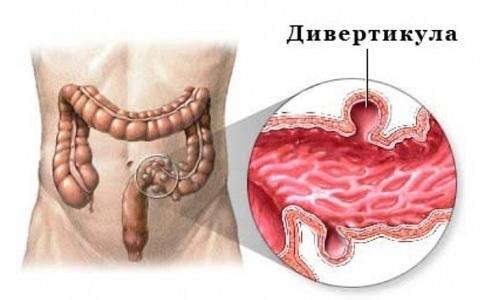 Для дивертикулеза толстой кишки характерно формирование мешковидных карманов в кишечной стенке, которые нарушают перистальтику