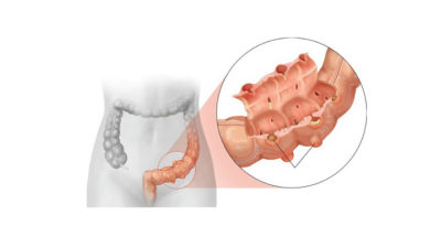 дивертикулеза толстого кишечника