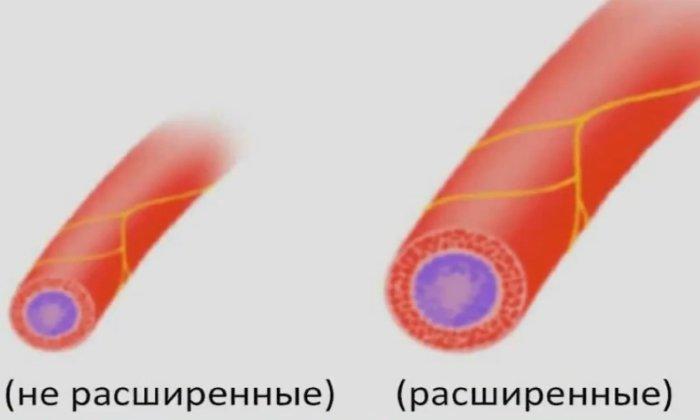 Дротаверин расширяет сосуды, незначительно снижая артериальное давление