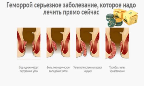 Здоров рекомендуют к применению при диагностированном внешнем или внутреннем геморрое