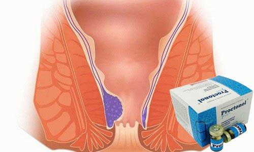 У 99% людей, которые использовали Proctonol уменьшился размер внутренних и наружных геморроидальных узлов