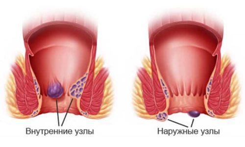 Медикамент употребляют при наличии геморроидального заболевания с разрешения лечащего доктора