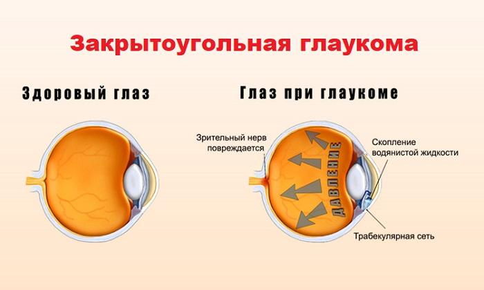 Закрытоугольная глаукома служит противопокзанием к назначению мази