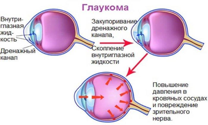 Дротаверин не обладает антихолинэргическим эффектом, поэтому может использоваться в лечении больных глаукомой