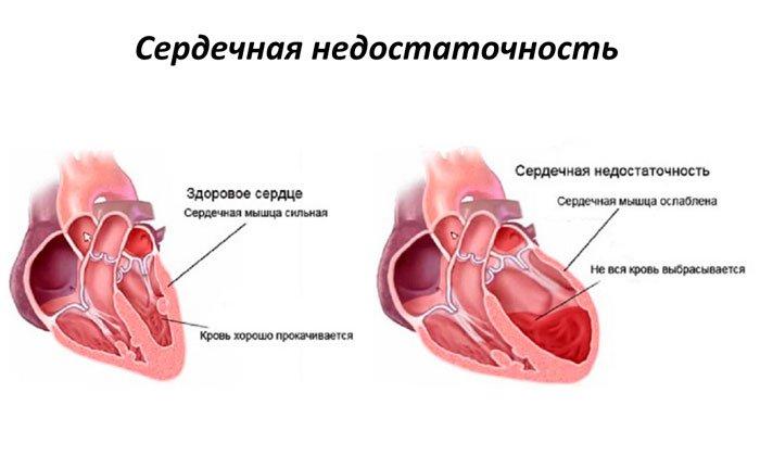 Запрещено применять порошок при наличии тяжелой сердечной недостаточности