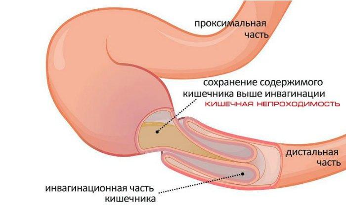 Запрещено применять порошок при наличии кишечной непроходимости