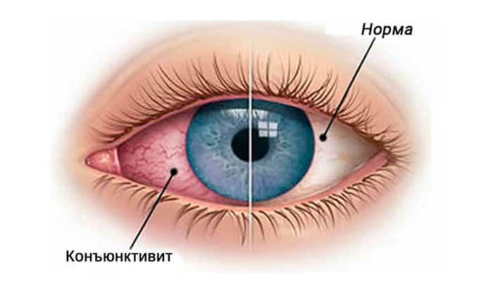 Глазную мазь и глазные капли применяют при конъюнктивите