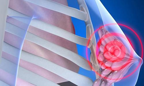 Мотилиум нельзя применять при опухоли молочной железы