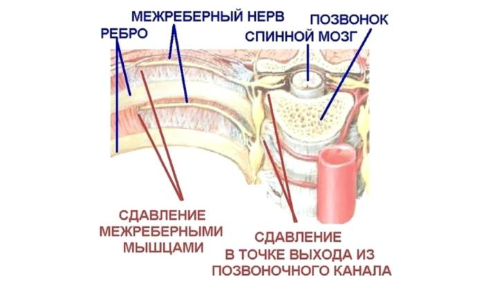 Новокаиновую смесь применяют при межреберной невралгии