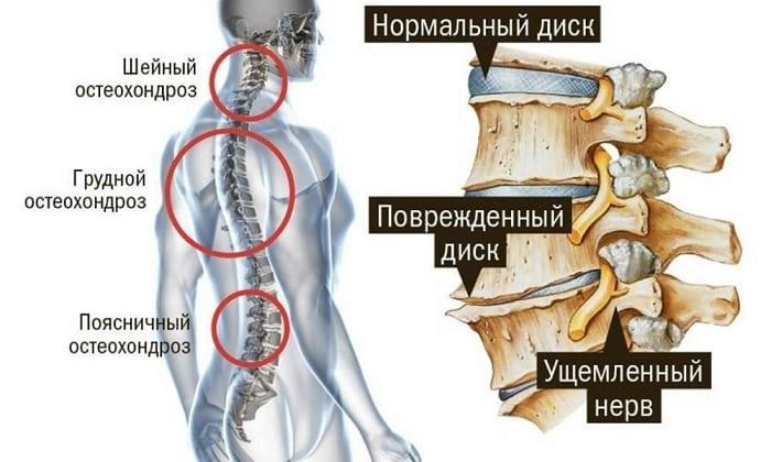 Новокаиновую смесь применяют при всех видах остеохондроза