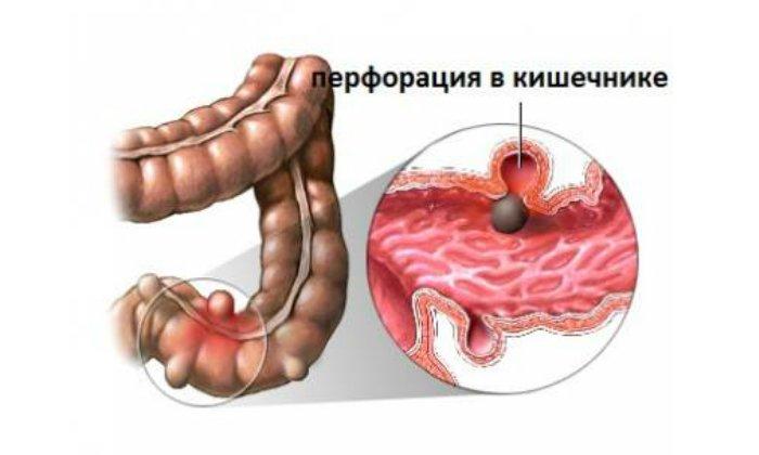 Запрещено применять порошок при наличии перфорации кишечника