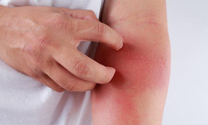 Лекарство запрещено к применению при наличии аллергии на компоненты медикамента