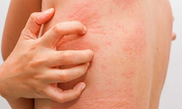 Если препарат используется местно, то существует вероятность развития высыпаний на кожном покрове