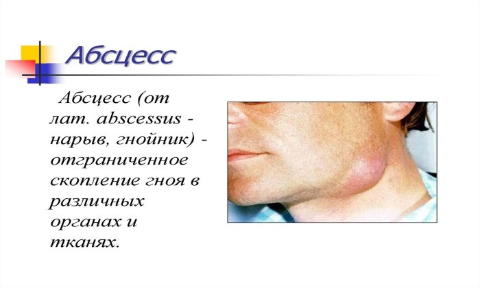 Препарат применяется при лечении абсцессов