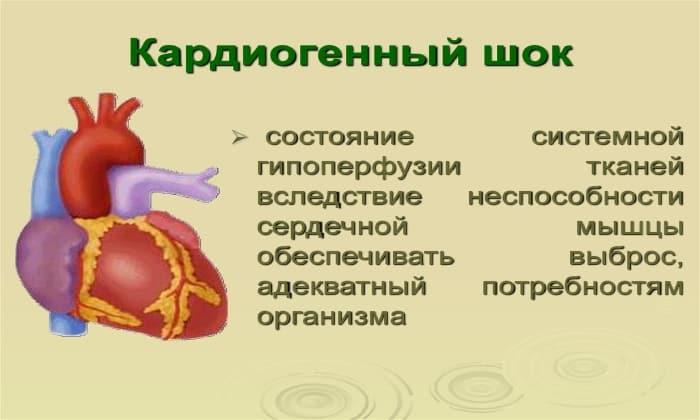 Дротаверин не применяют при кардиогенном шоке