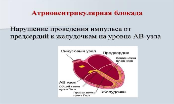 Дротаверин не применяют при атриовентрикулярной блокаде 3 и 4 степеней