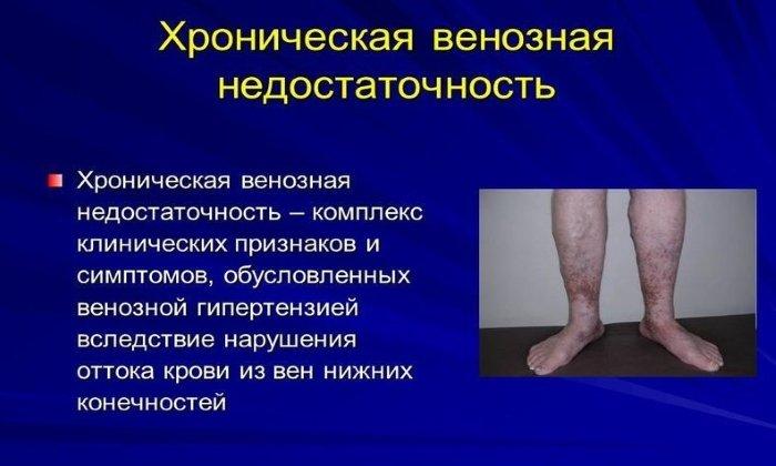 Препарат задействуют в составе симптоматической терапии при венозной недостаточности