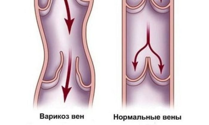 Препарат задействуют в составе симптоматической терапии при варикозе