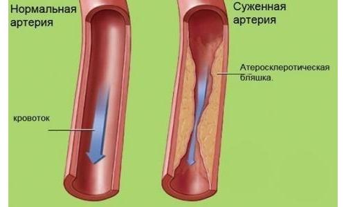 Сочетание диосмина с геспередином повышает тонус и эластичность сосудистых стенок, увеличивает скорость кровотока