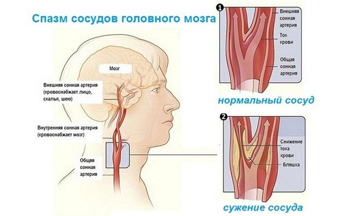 Папавериновую мазь не назначают при спазмах сосудов головного мозга